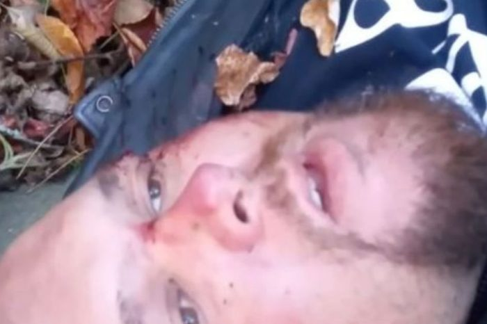 Motorcycle Crash Survivor Gives What He Thinks Is His Final Goodbye